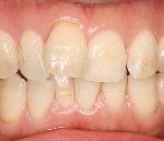 治療前の歯